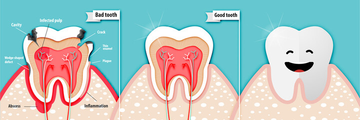 Paper art of health science about bad tooth and good tooth vector