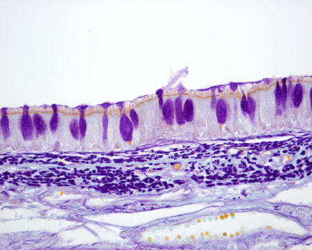 Tracheal mucosa. Gabe technique
