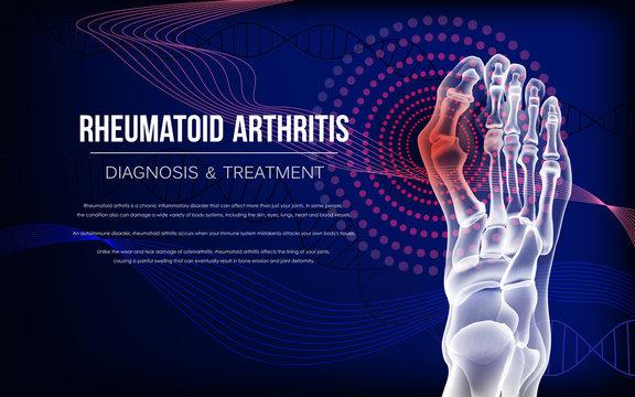 Rheumatoid arthritis Bones the of foot