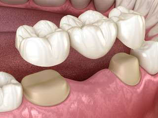 Dental bridge of 3 teeth over molar and premolar. Medically accurate 3D illustration of human teeth treatment