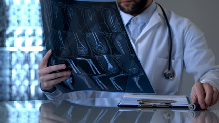 Male traumatologist looking at patient leg x-ray, diagnostic health problem