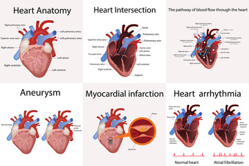 heart anatomy and types of heart disease vector illustration