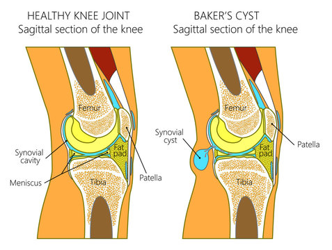 Vector illustration of a healthy human knee joint and unhealthy knee with Baker's cyst. Anatomy of human knee, sagittal section of the knee. for advertising and medical publications