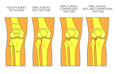 Vector illustration of a healthy bones of human knee and a knee with tibial plateau split, compression or depression fractures. Front view of the knee. For advertising, medical publications