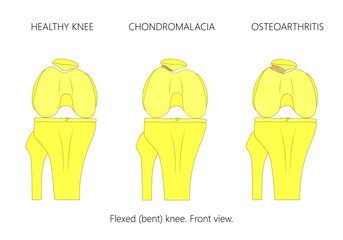 Vector illustration of the healthy knee joint, patellar chondromalacia and Patellofemoral osteoarthritis. Front view of flexed or bent knee.