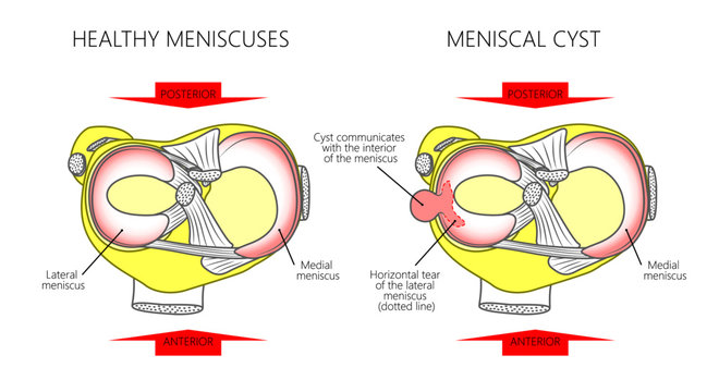 Vector illustration of a proximal surface of tibia in a healthy human knee joint and unhealthy knee with horizontal tear of meniscus and meniscal cyst. For advertising and medical publications