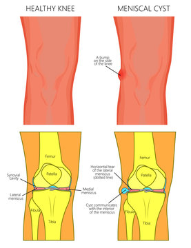 Vector illustration of a healthy human knee joint and unhealthy knee with horizontal tear of meniscus and meniscal cyst. Front, anterior view of knee. For advertising and medical publications