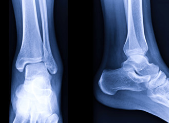Radiographic image or x-ray image of Left ankle joint.