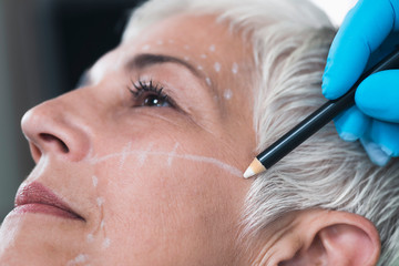 Anti-Aging Concept. Doctor's Hand Preparing Women's Face for Cosmetic Injections