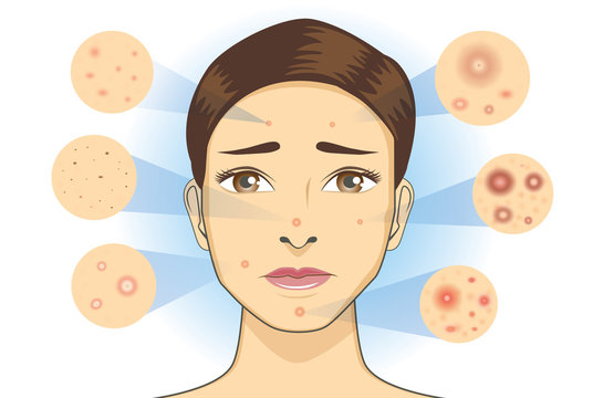 All Type of acne icon from facial skin of woman. Illustration about dermatology diagram.