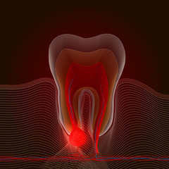 Linear stylization of dental disease with a point of pain and inflammation. Medical illustration of tooth root inflammation, tooth root cyst, pulpitis. X-ray effect