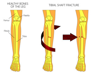 Vector illustration of a healthy bones of human leg and a leg with tibial shaft fracture. Twisting, blunt trauma injury. Front view of the foot with knee. For advertising, medical publications