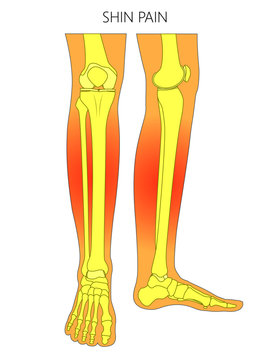 Vector illustration of bones of a human legs (anterior and medial view) with shin pain. Vector illustration for advertising, medical (health care) publications