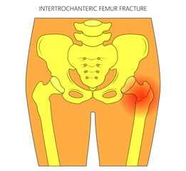 Vector illustration of healthy human hip and intertrochanteric femur fracture without dislocation. For advertising and medical publications