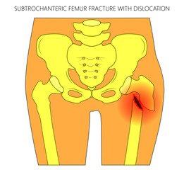 Vector illustration of healthy human hip and subtrochanteric femur fracture with dislocation. For advertising and medical publications