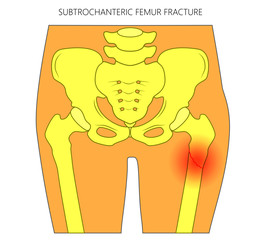 Vector illustration of healthy human hip and subtrochanteric femur fracture without dislocation. For advertising and medical publications