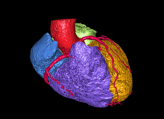 CT Coronary Artery 3D rendering image create Heart shape 3D colorful with vessels name is Coronary Artery. Clipping Path