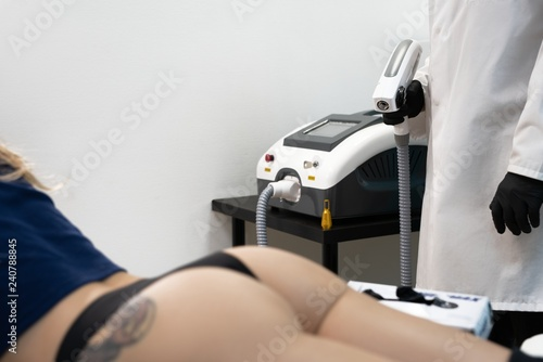 Process Of Laser Tattoo Removing From The Buttock Stock Photo And