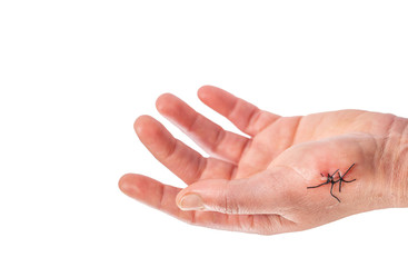Caucasian left hand with 3 stitches over white background
