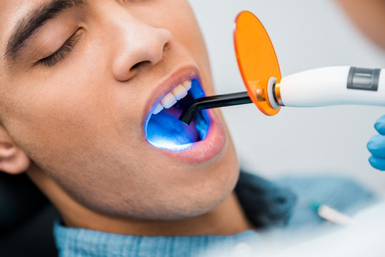 close up of african american man during whitening procedure