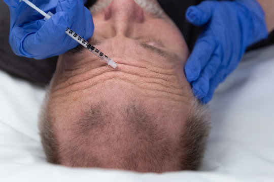 middle aged caucasian man getting a wrinkle treatment on forehead