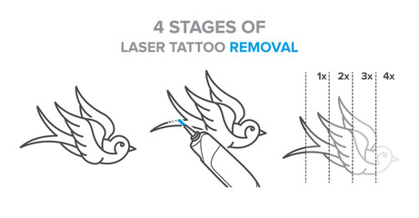 4 Stages of laser tattoo removal illustration, vector icons