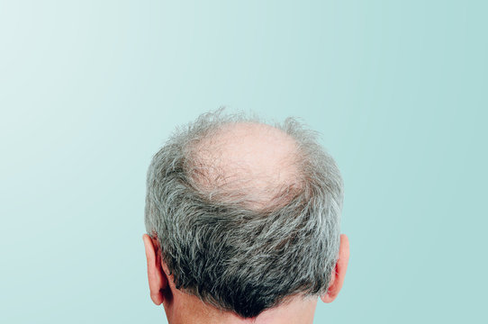 Rear view of a male head without hair on blue pastel background. Hair loss concept, bird's nest on the head. Problems with hair regrowth, shampoo for facial hair growth.