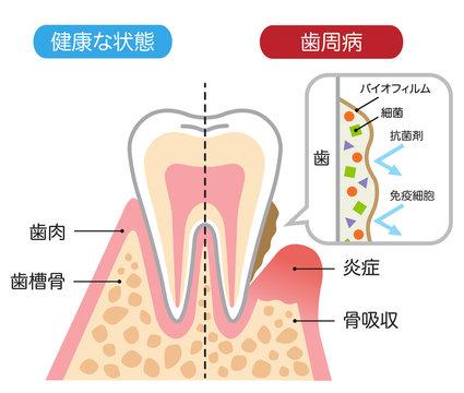 健康な歯と歯周病 バイオフィルム 断面図