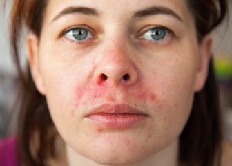 woman's face with perioral dermatitis