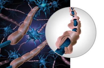 Multiple Sclerosis Myelin Disease