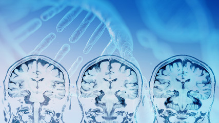 magnetic resonance image (MRI) of the brain overlay with DNA strain