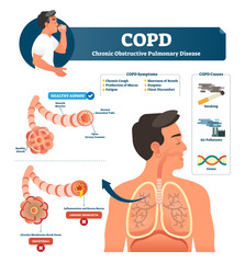 COPD vector illustration. Labeled chronic obstructive pulmonary explanation