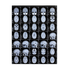 Isolated X-ray of a child's head. Magnetic resonance imaging. MRI of the brain. Day of the medical worker radiologist.