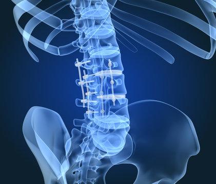 Spinal fixation system - titanium bracket. X-Ray 3D illustration