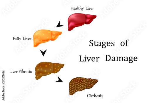 stages of liver damage, liver disease healthy, fatty, liver