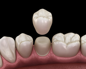 Dental crown premolar tooth assembly process. Medically accurate 3D illustration of human teeth treatment