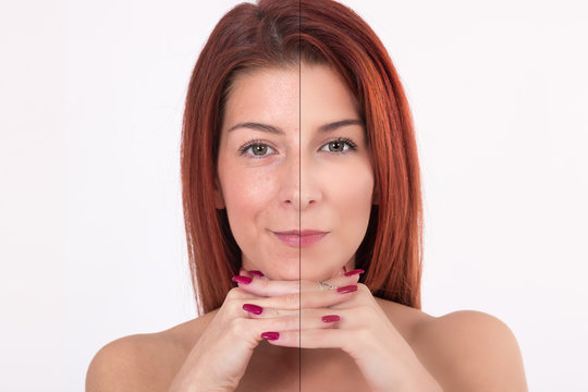 Before and after beauty treatment.