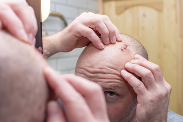 In a mirror reflection, a man examines a wound with sutures on his head. Close-up.