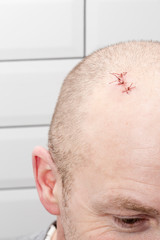 On the man's head there is a wound with sutures, after injury. Close-up.