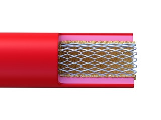 Illustration of stent placed in an artery