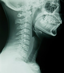 Lateral Head & Neck X-Ray