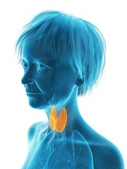 Illustration of an old woman's thyroid gland