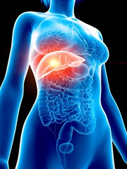 Illustration of a woman's painful liver