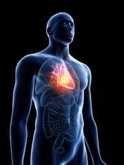 Illustration of a man's heart tumour