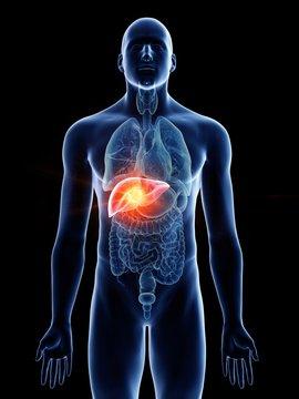 Illustration of a man's liver cancer
