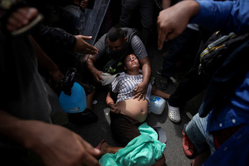 A pregnant migrant, part of a caravan from El Salvador travelling to the U.S., faints during an operation of the Mexican police to detain them for entering the country illegally, in Metapa