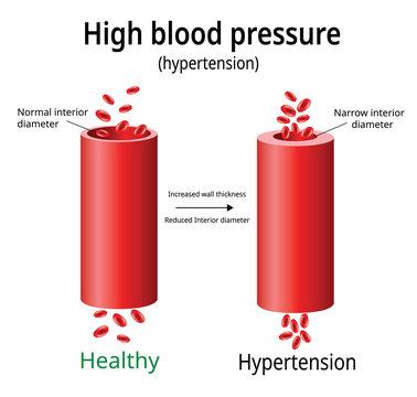 Hypertension, high blood pressure vector, two blood vessels, science and medical use, Vector Illustration