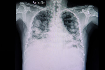 metastatic carcinoma of the lungs