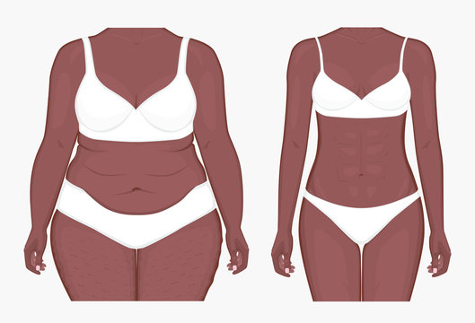 Vector illustration. Woman body problem fat belly in African American female, weight loss to normal slim figure. Front view. For advertising of cosmetic plastic procedures, medical publications