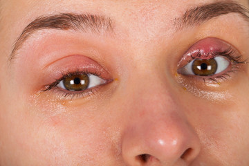 Upper eyelid infection - chalazion